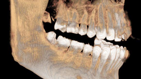 Wenn Weisheitszähne entfernen, dann beim Oralchirurgen