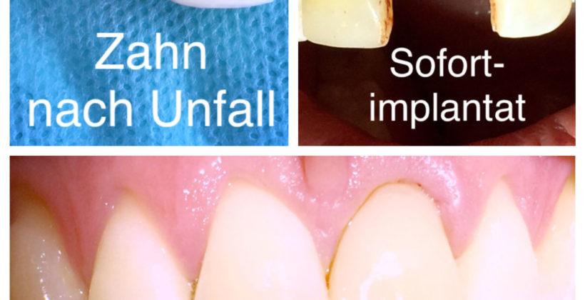 Unfall mit Zahnverlust? Ab zu Ihrem Implantologen in Berlin